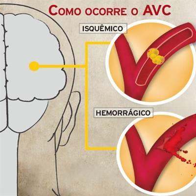 Acidente vascular cerebral - Sintomas e tratamento