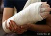 Como Quebrar seu Braço, Perna ou Pulso