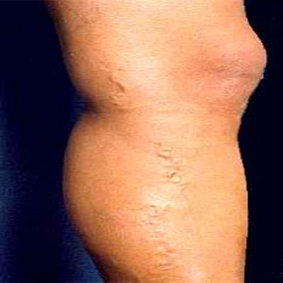 O que é Eczema (varizes)