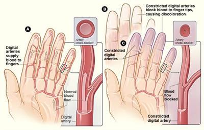 Fenômeno de Raynaud - dedos brancos e dos pés, sem fluxo de sangue