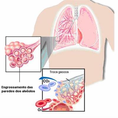 O que é Fibrose pulmonar (idiopática)
