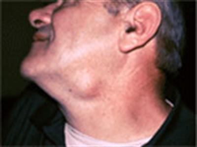 Glândulas inchadas - é um problema?