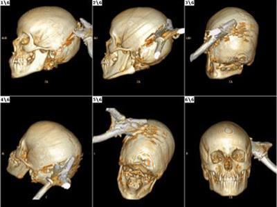 Menor lesão na cabeça