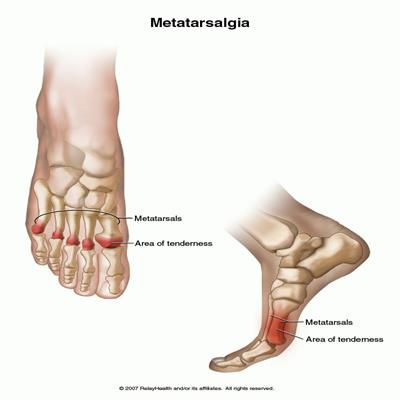Metatarsalgia - dor e faz volume no antepé