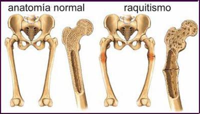 Raquitismo - Fraqueza muscular, ossos fracos e deformidade