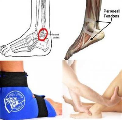 Tendinite - dores e rigidez nas articulações