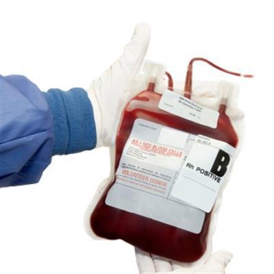 Por que você precisa de uma transfusão de sangue