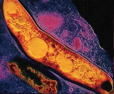 Tuberculose (tb) - Dor no peito e não pode parar de tossir